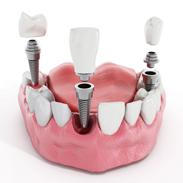 Benefits of Tooth Implants