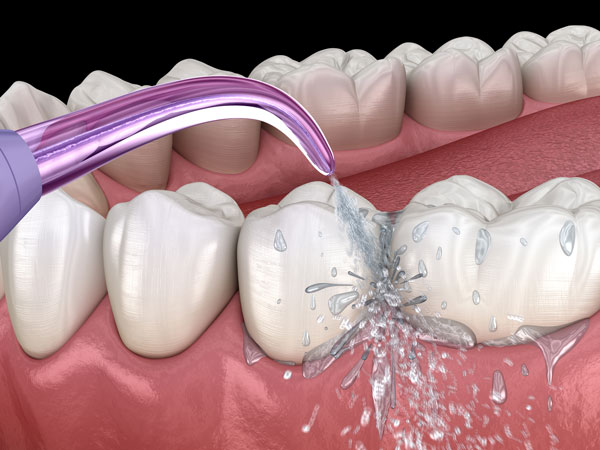 Caring for a Front Tooth Implant