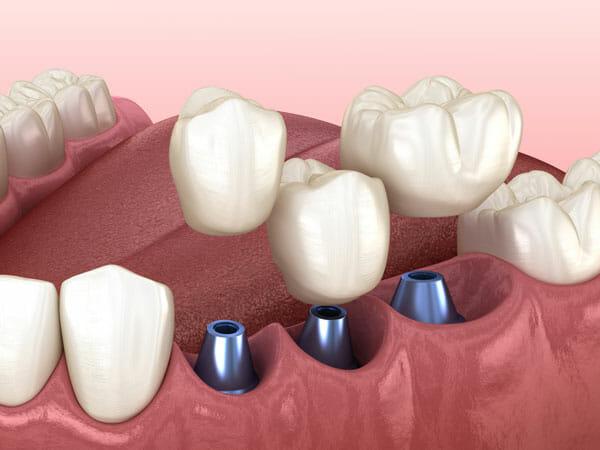 Dental Implants in Central Park