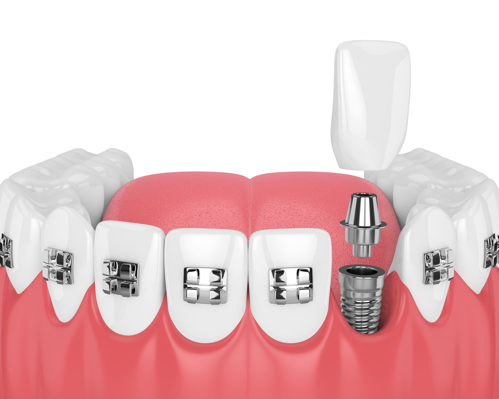 Front Tooth Implant in NYC